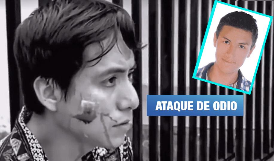 Miraflores: Policía deja libre a agresor homofóbico que desfiguró a joven